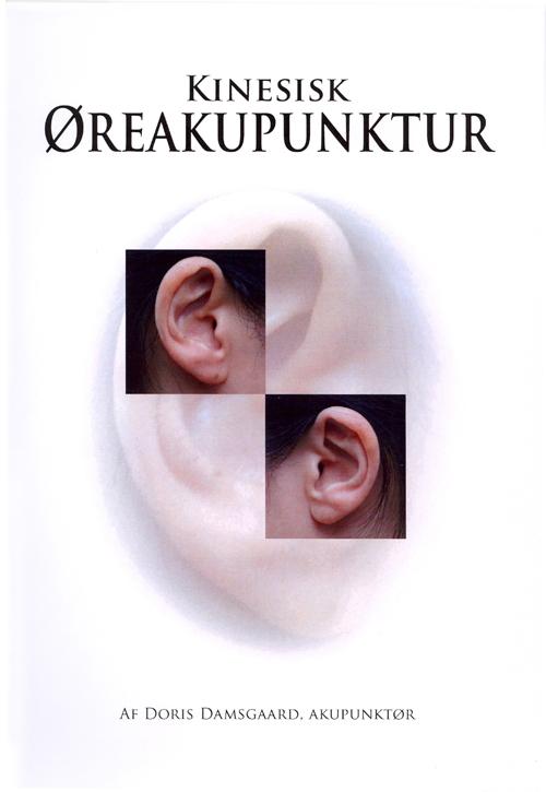Kinesisk øreakupunktur
